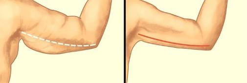 arm-lift-2.jpg