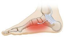 posterior-tibial-tendonitis-300x176.jpg