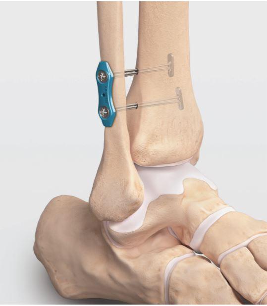 Dual Syndesmosis TightRope