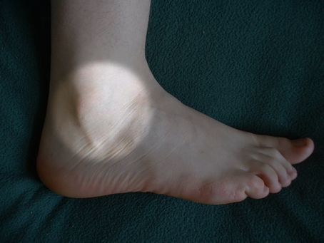 An Inside Look Lateral Ankle Instability