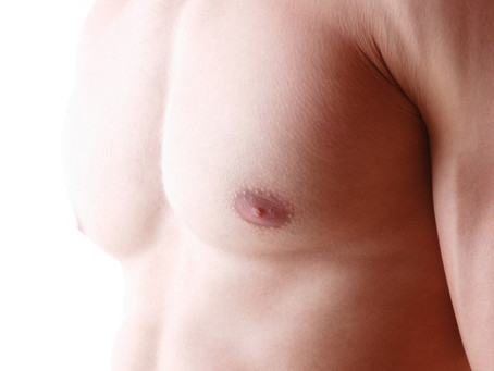 Gynaecomastia | Medisculpt | Cosmetic Surgery
