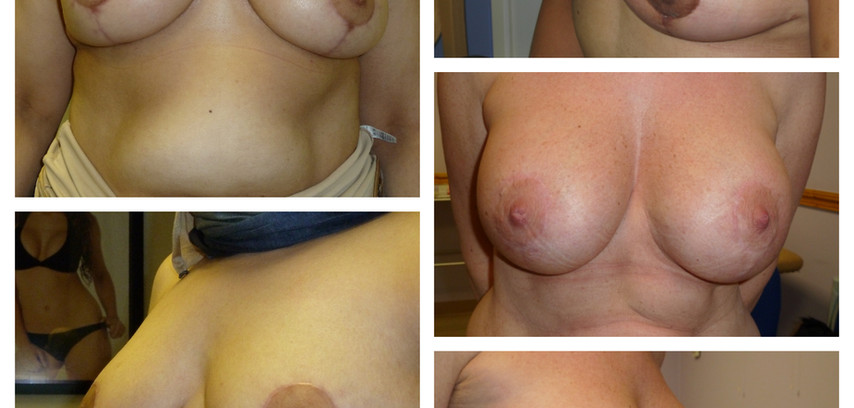 after breast uplift with and without implants