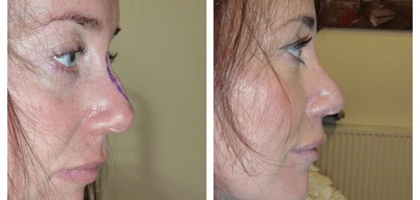 before and after closed nose reshaping
