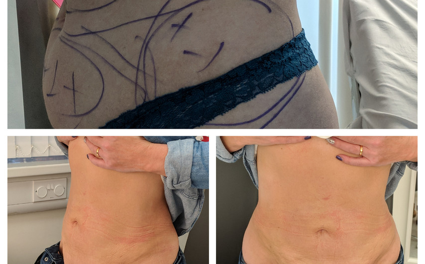before/after VASER liposuction to abdomen