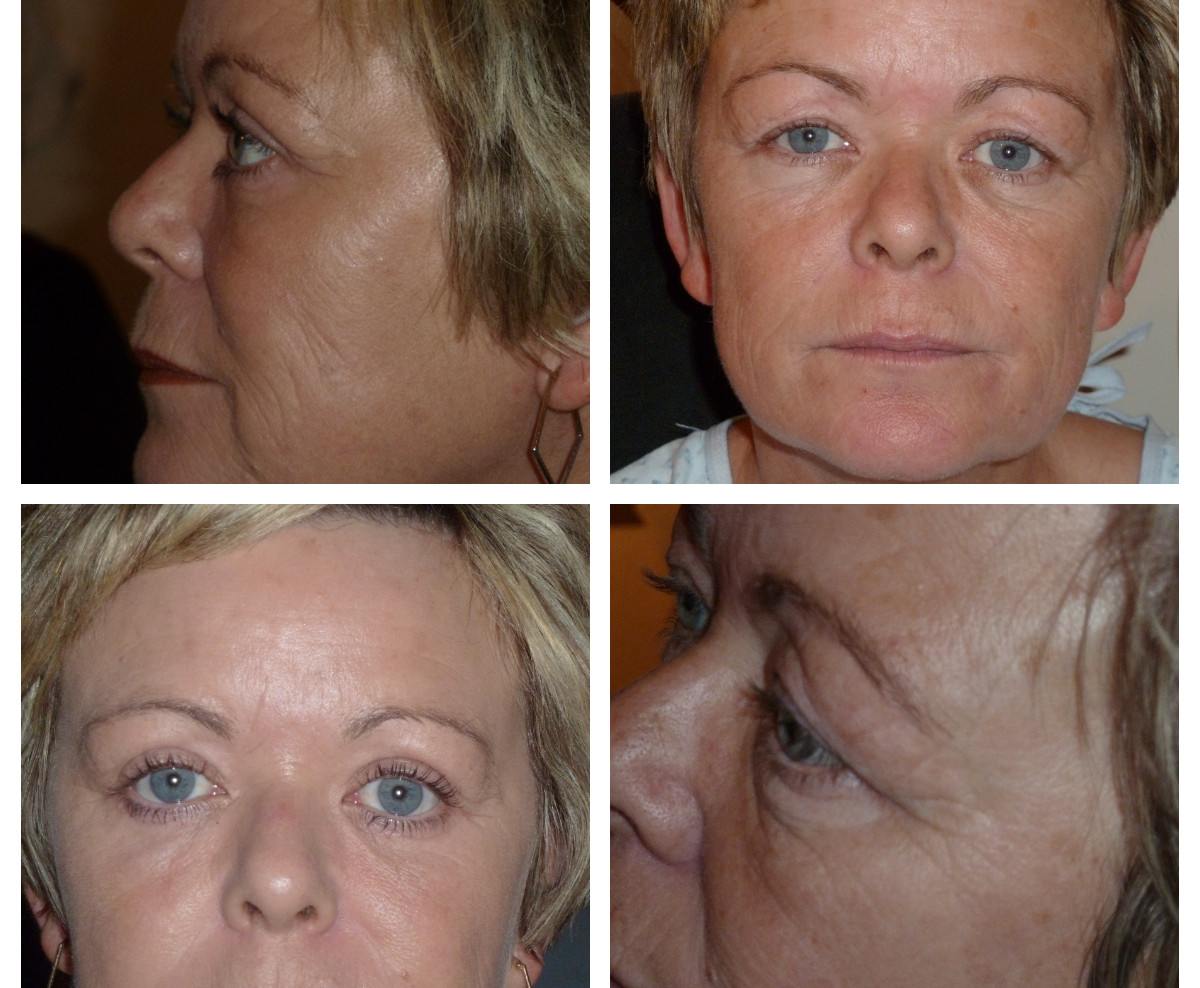 before/after blepharoplasty(eyelid surgery)