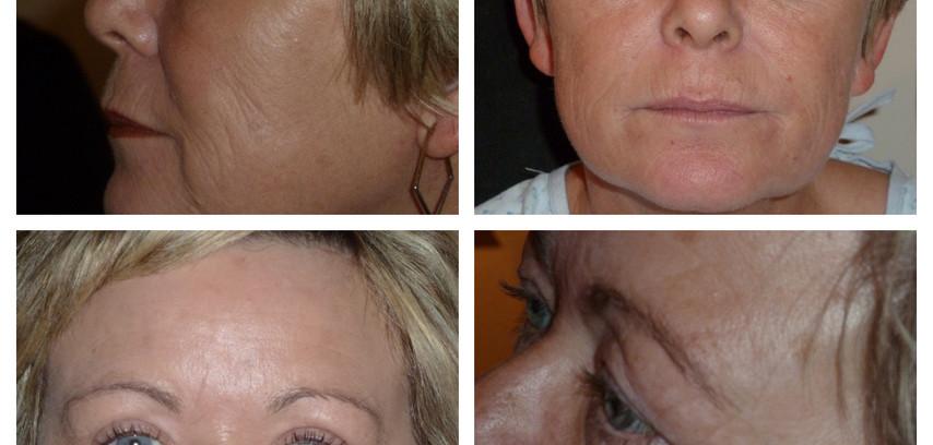 before/after blepharoplasty(eyelid surgery)