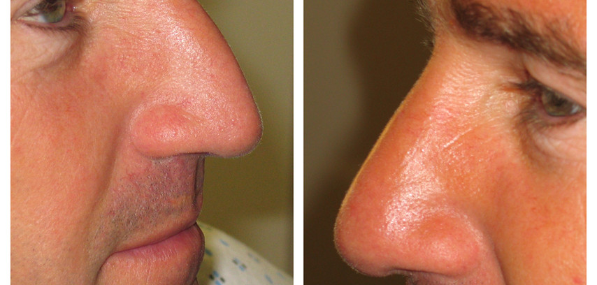 before and after closed nose reshaping(rhinoplasty)