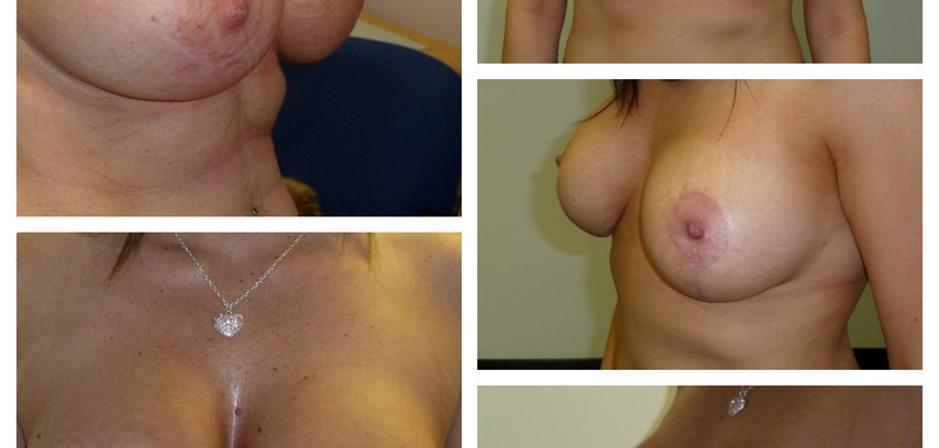 after breast uplift with implants