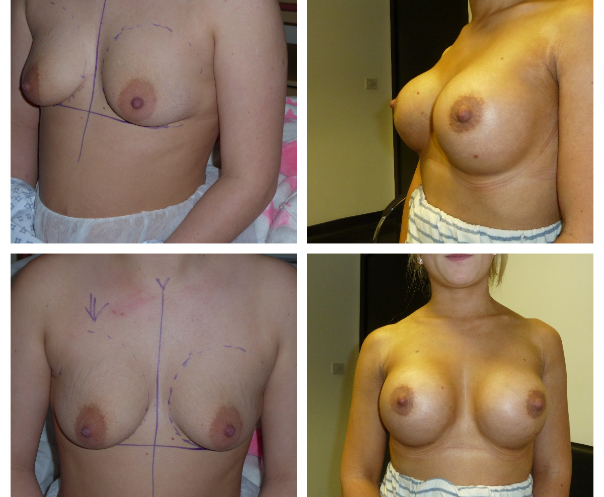 before /after breast augmentation
