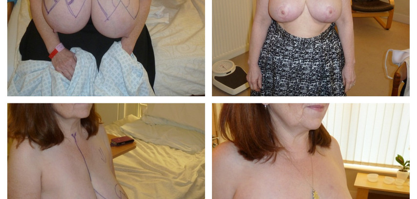 before/after breast reduction