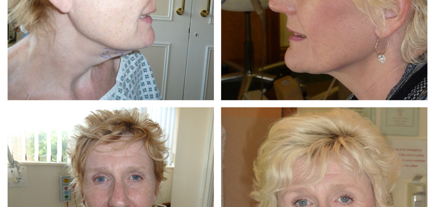 before/after face/neck lift with eyelid surgery