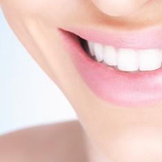 Teeth whitening | Manchester 😁