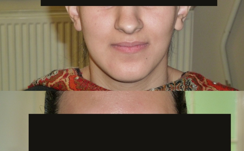 before/after ear reshaping