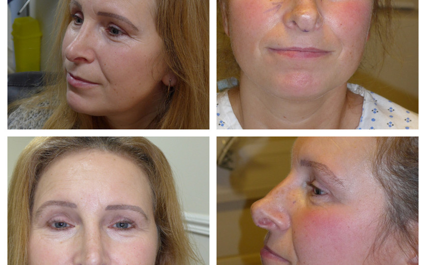 before/ after open rhinoplasty(nose reshaping)