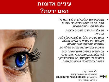 הידעת? עיניים אדומות