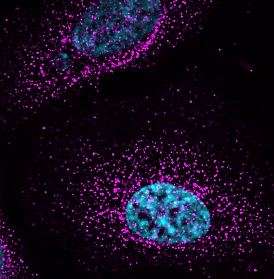 Myosin%20VI%20and%20DNA%202_edited.png