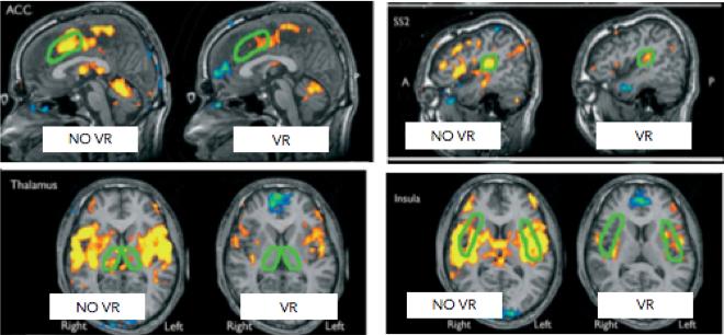 Images IRM montrant l'impact de la douleur dans le cerveau avec et sans réalité virtuelle