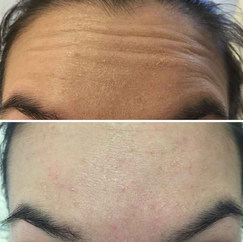 Amanda-Forehead-Before-and-After.jpg