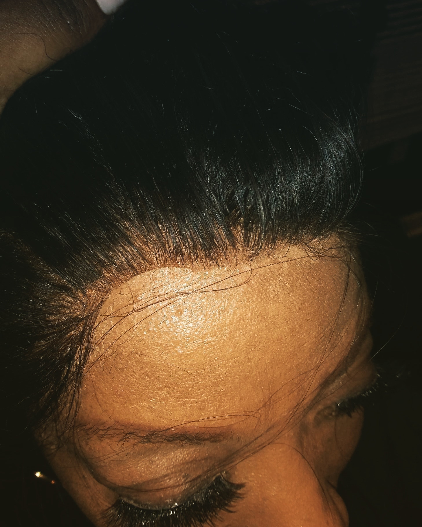 Frontal Lace Closure install