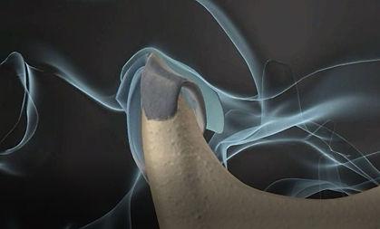 articulação têmporo mandibular