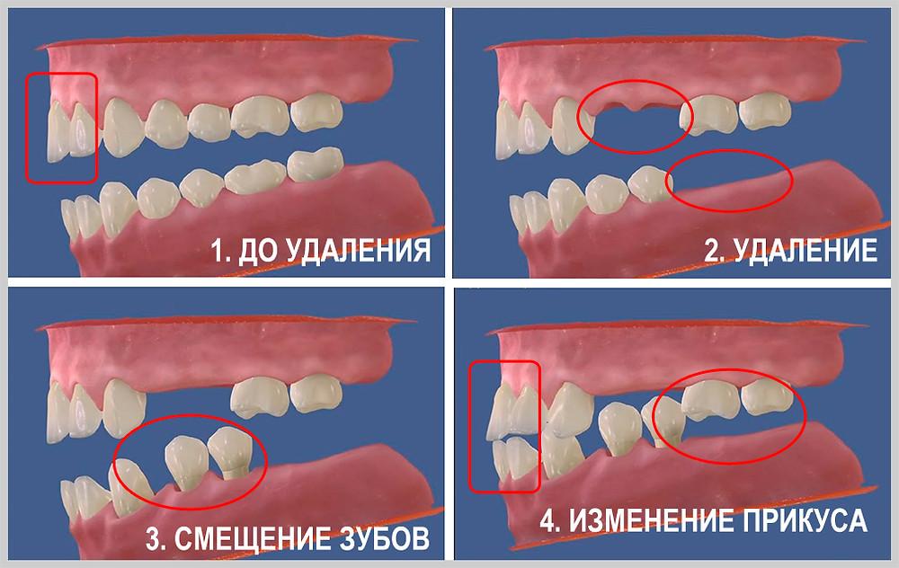 На фотографии можно увидеть, как смещаются зубы и изменяется прикус после длительного отсутствия зубов