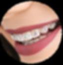 kisspng-dental-braces-tooth-dentistry-vi