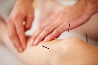 acupuntura_1.jpg