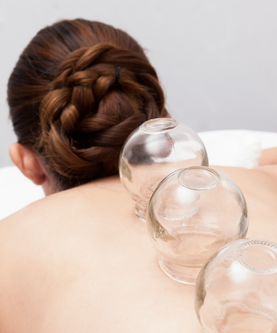 cupping.png