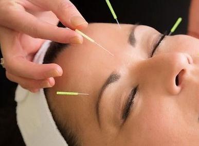 acupuntura_facial_1.jpg