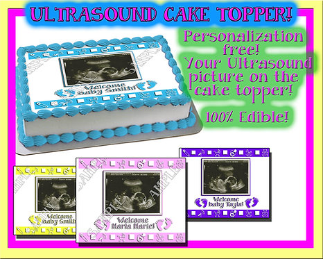 Ultrasound photo cake topper for baby showers
