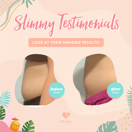 Slimmy Testimonials Renew Version v2-24.