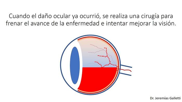 ¿Qué es la retinopatía diabética proliferativa y cómo se trata?