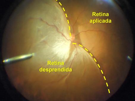 Desprendimiento de retina: lo que debemos saber para prevenir la pérdida de la visión