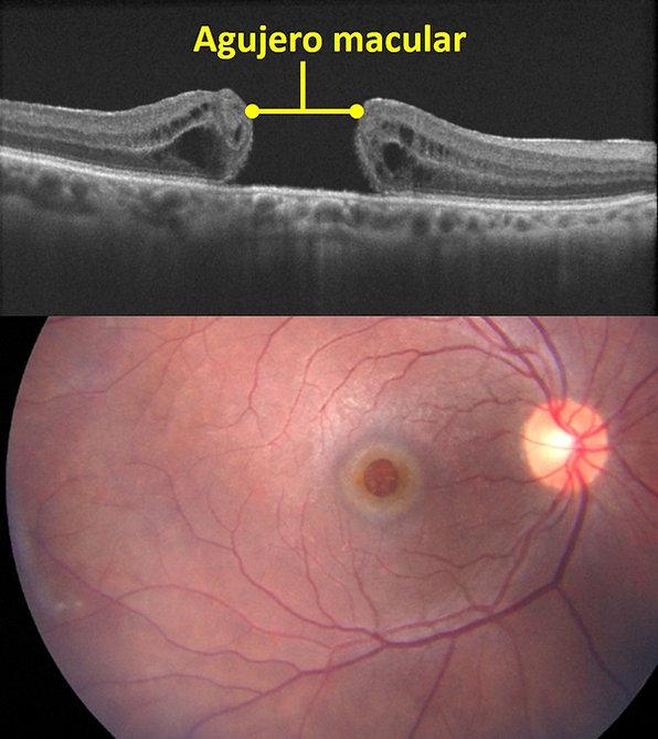 Agujero macular en OCT y en fondo de ojos