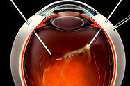 Cirugía vitreorretinal (vitrectomía microincisional)