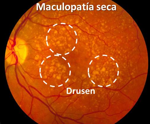Maculopatía seca