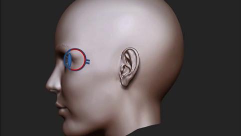 ¿Qué es un desprendimiento de retina y cómo se trata?