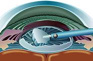 Cirugía de catarata (facoemulsificación)