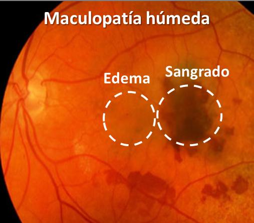 Maculopatía húmeda