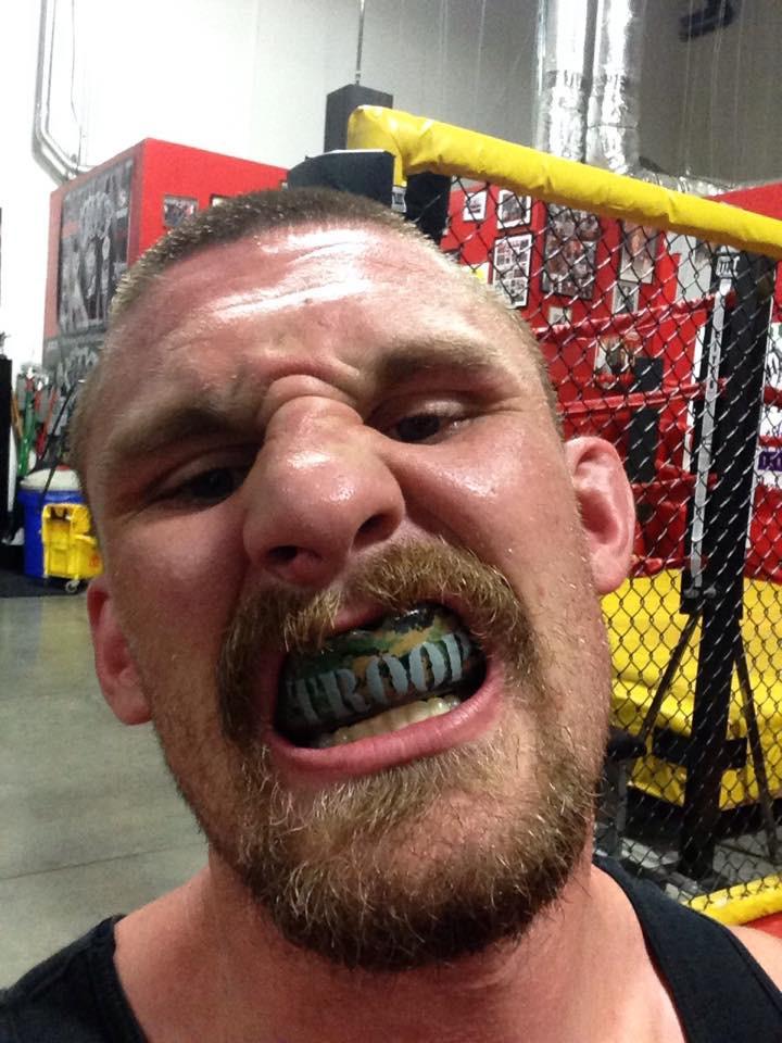 blake_troop_shurfit_mouthguard_closeup.jpg