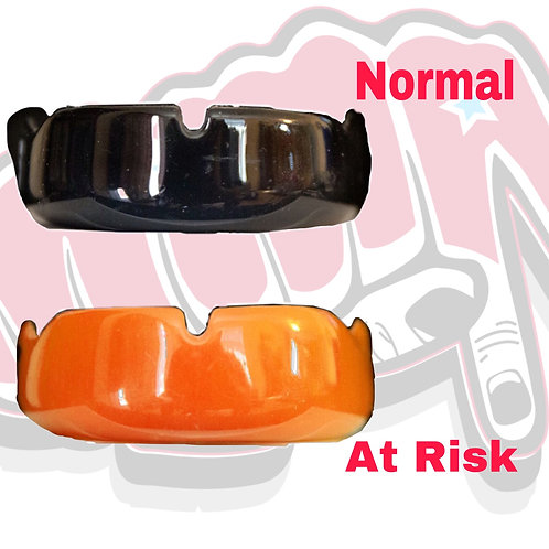 Essential Mouthguard by SHURFIT Corp