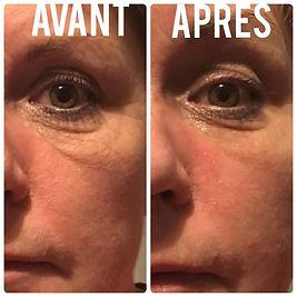 massage visage ant rides