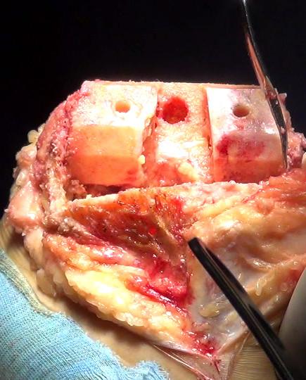 champs opération exsangue garrot sterile hemodynamique compression contrôlée hemaclear.jpg