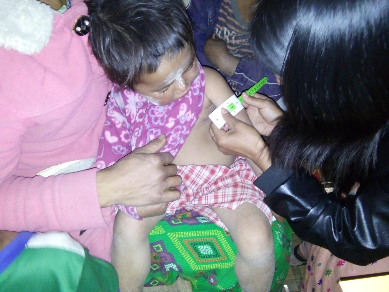 Mesuring MUAC to U5 children