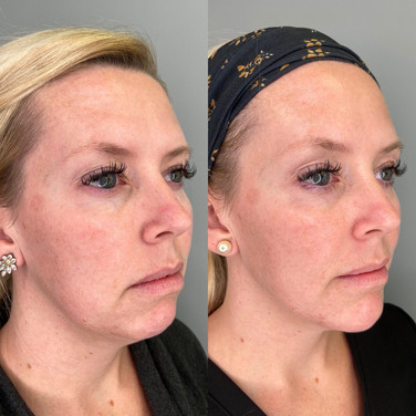 Jawline, Chin and Marionette Lines Filler
