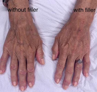 Hand Filler