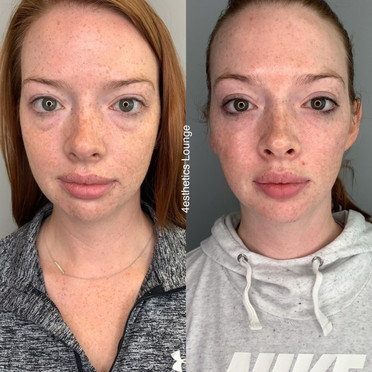 Tear Troughs and Cheeks Filler