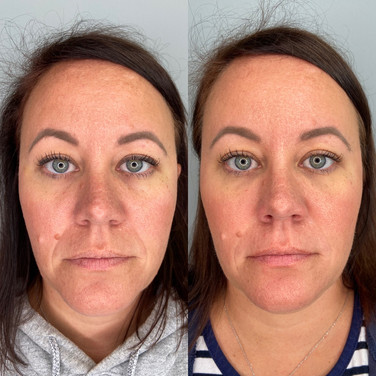 Tear Troughs, Cheeks, and Smile Lines Filler