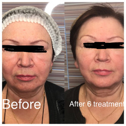 face lift before and after.JPG
