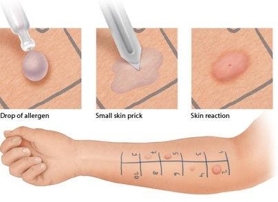 Skin Prick.jpg